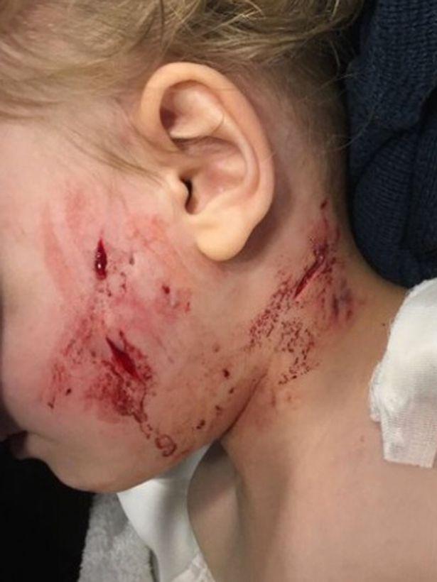 Τρομακτικό: Η στιγμή που εξαγριωμένο σκυλί αρπάζει τρίχρονο παιδάκι από το λαιμό!