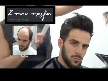 προσθετική μαλλιών για Άνδρες από την BERGMANN KORD.