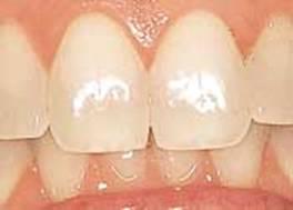 mt_ignore:Λεύκανση δοντιών