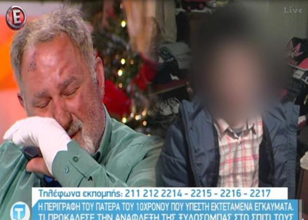 Κρήτη: Ξέσπασε σε δάκρυα ο πατέρας του 10χρονου που κάηκε στη φωτιά από τη ξυλόσομπα (Video)
