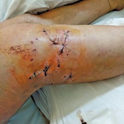 Κρήτη: 42χρονη νοσηλεύεται στο νοσοκομείο μετά από επίθεση αδέσποτου σκύλου (φωτο)