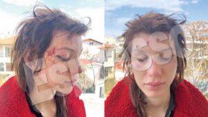 Γνωστή Ελληνίδα πορνοσταρ έπεσε θύμα απαγωγής και άγριου ξυλοδαρμού από γυναίκες! (φωτο)