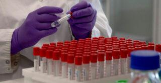 Δεν πρέπει να μιλάμε για άρση μέτρων – Ένα εξάμηνο μετά το εμβόλιο η ανοσία του κοινού!